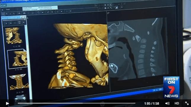 A contramarcha, cirugía médula espinal