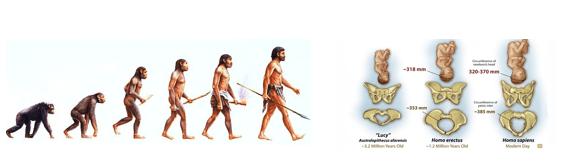 dilema obstétrico y evolución